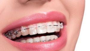 ماهو تقويم الاسنان المخفي سعر تقويم الاسنان المخفي تكلفة تقويم الاسنان في ايران عيادة كوروش