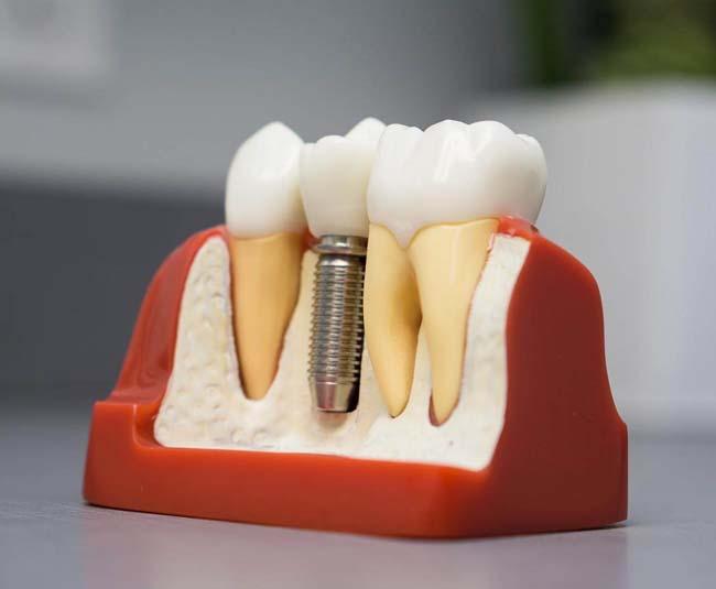 زراعة الاسنان في ايران تكاليف زراعة الاسنان في ايران افضل مراكز زراعة الاسنان